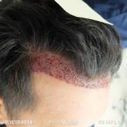 hairline design hair transplant