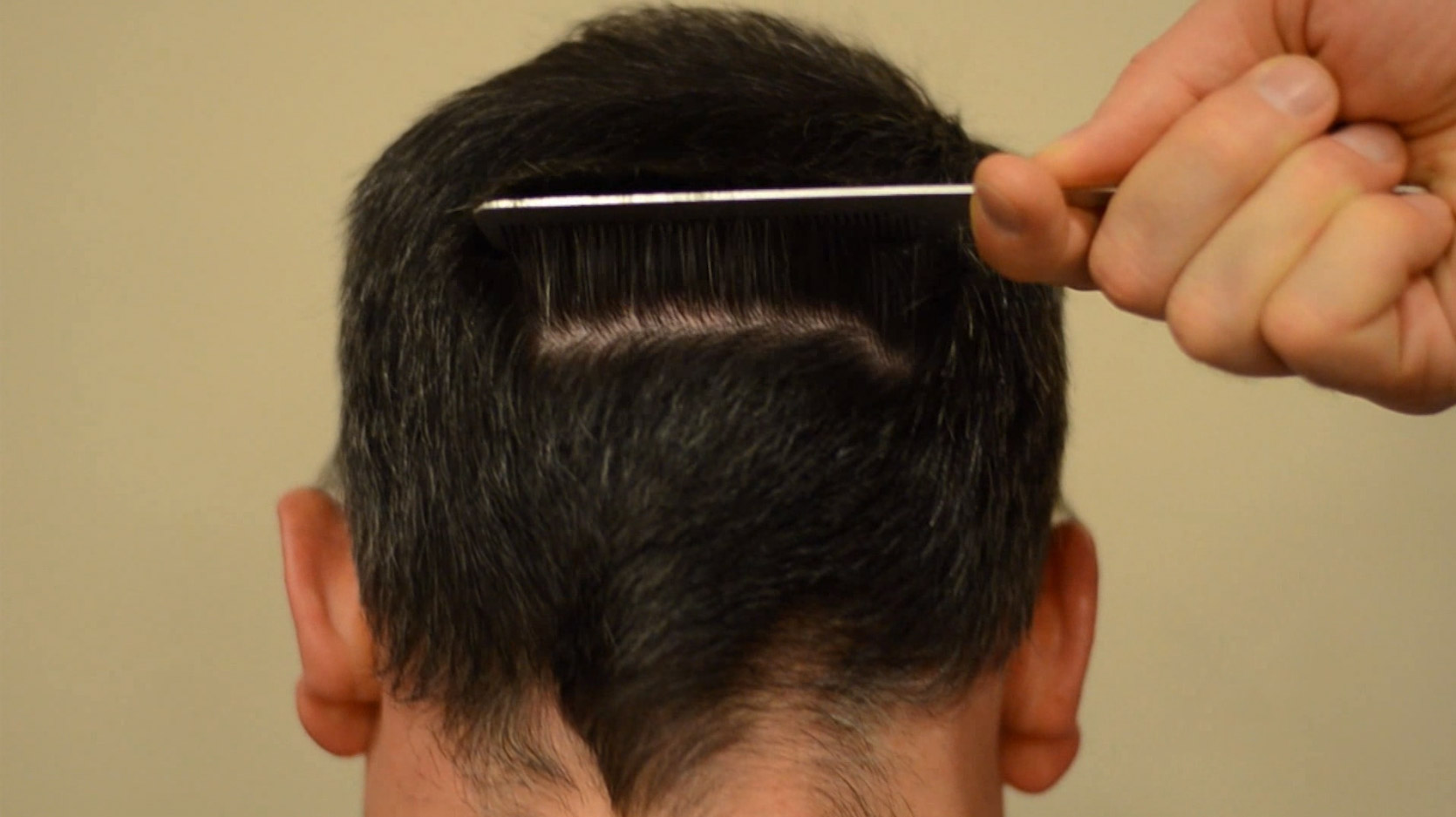 comb in back of the head showing hair transplant scar