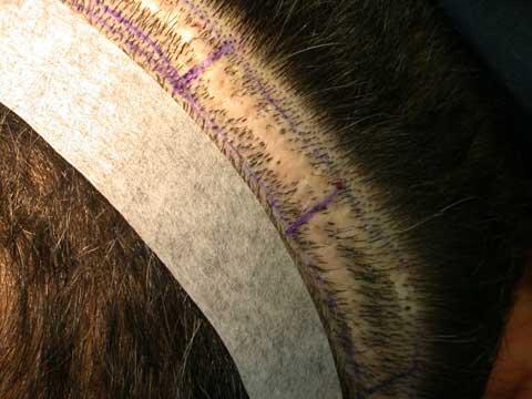 wide hair transplant scar