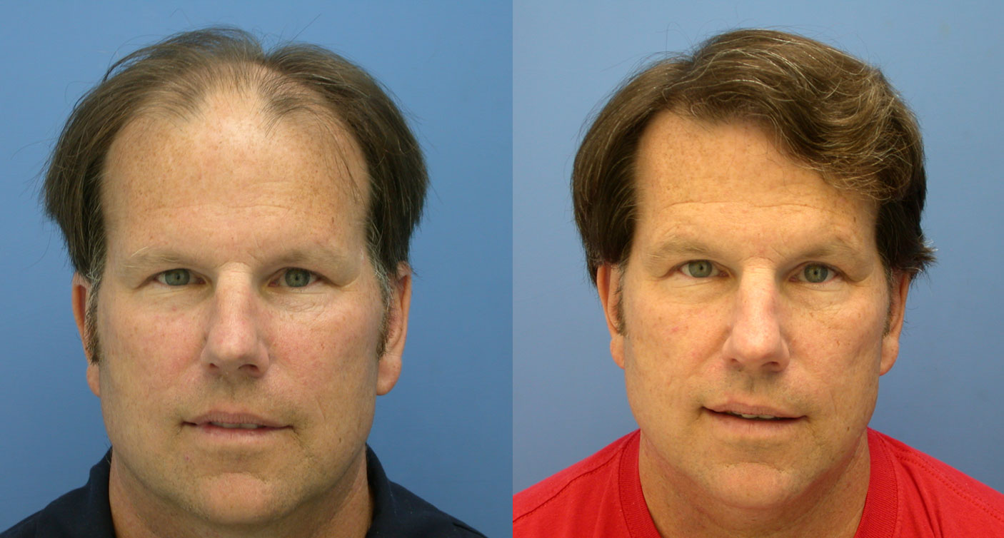 hasson and wong before and after of hair transplant testimonial patient