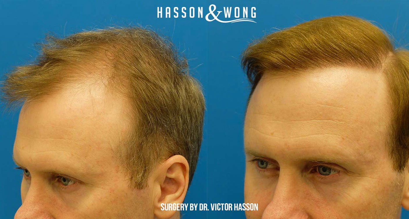Hair transplant before and after Hasson and Wong reviews