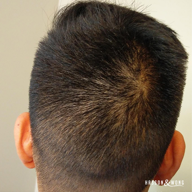fue hair transplant patient back of head post surgery