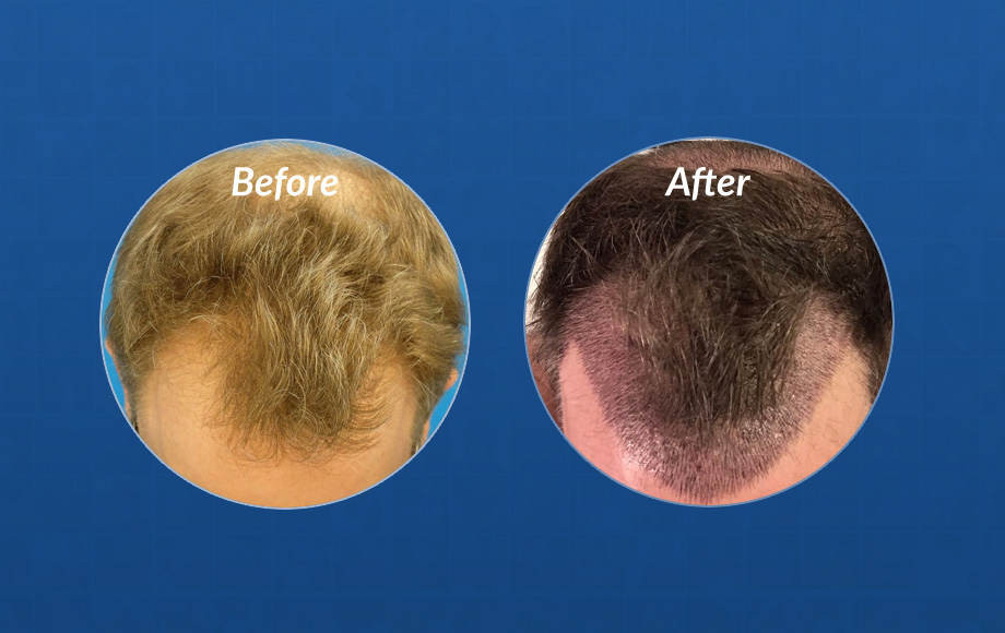 JC's hair transplant timleline