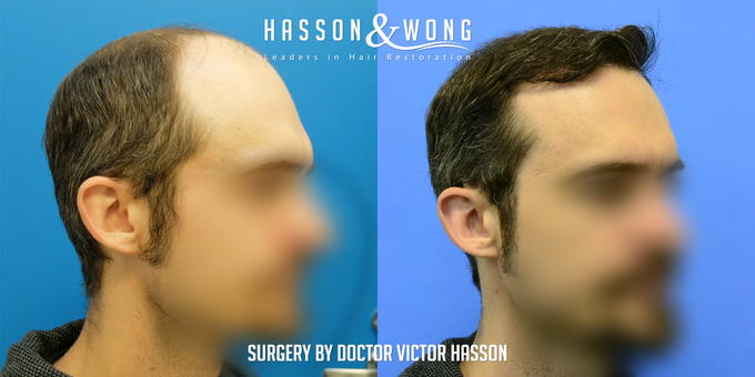 hair transplant patient before after hair transplant surgery right temple