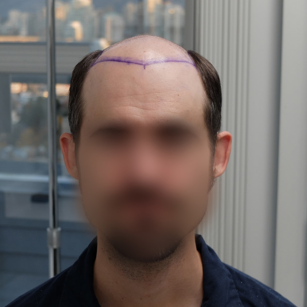 hair transplant patient day of surgery 5599 grafts FUT