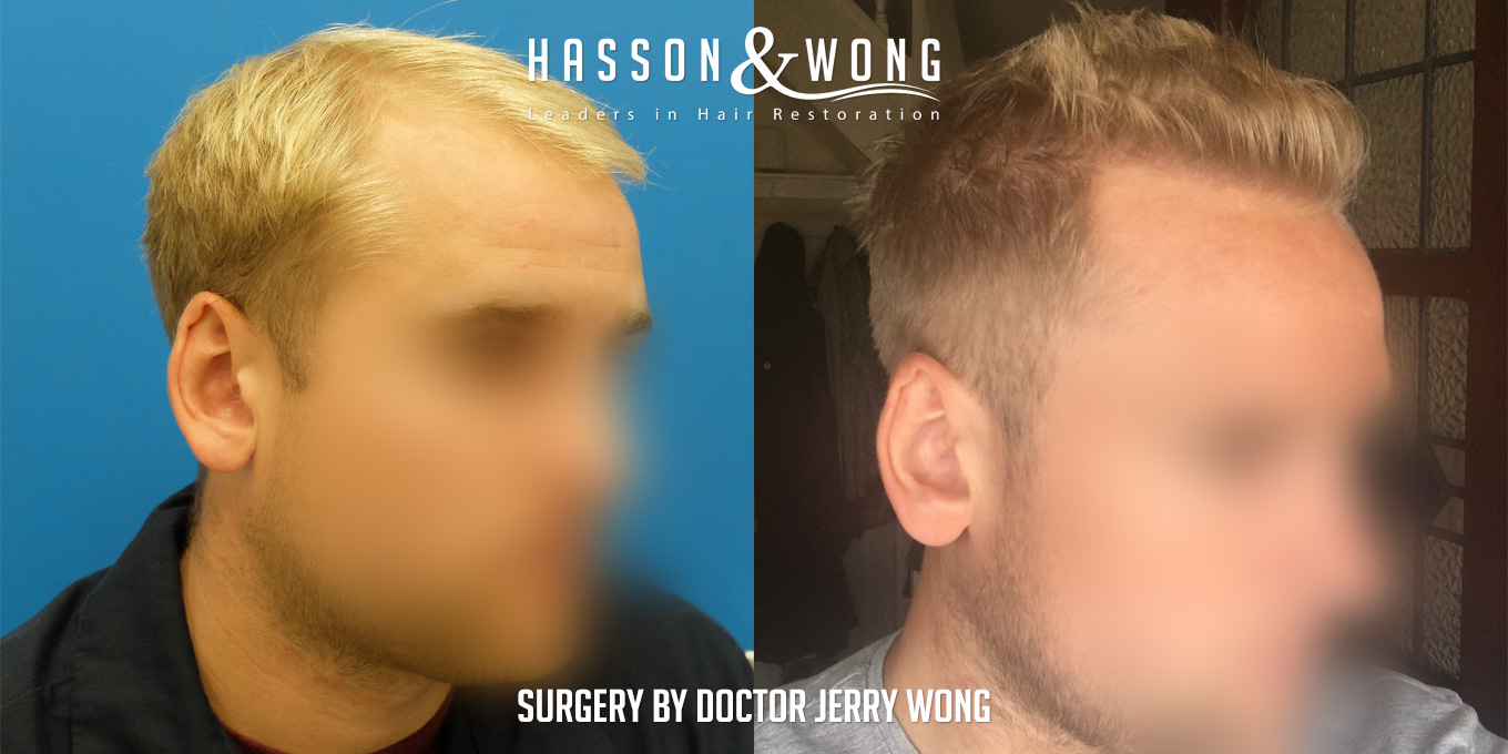 after hair transplant surgery right temple 2017
