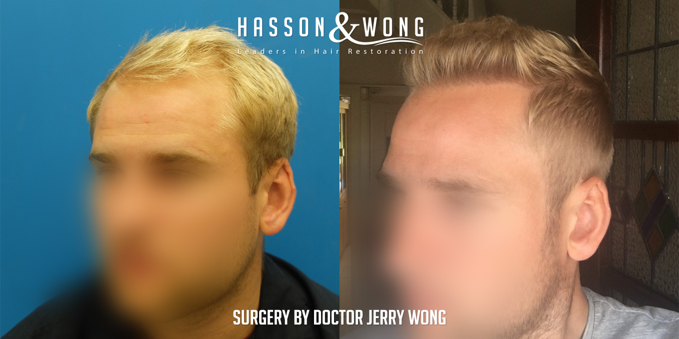 hair transplant before and after surgery by Dr. Wong
