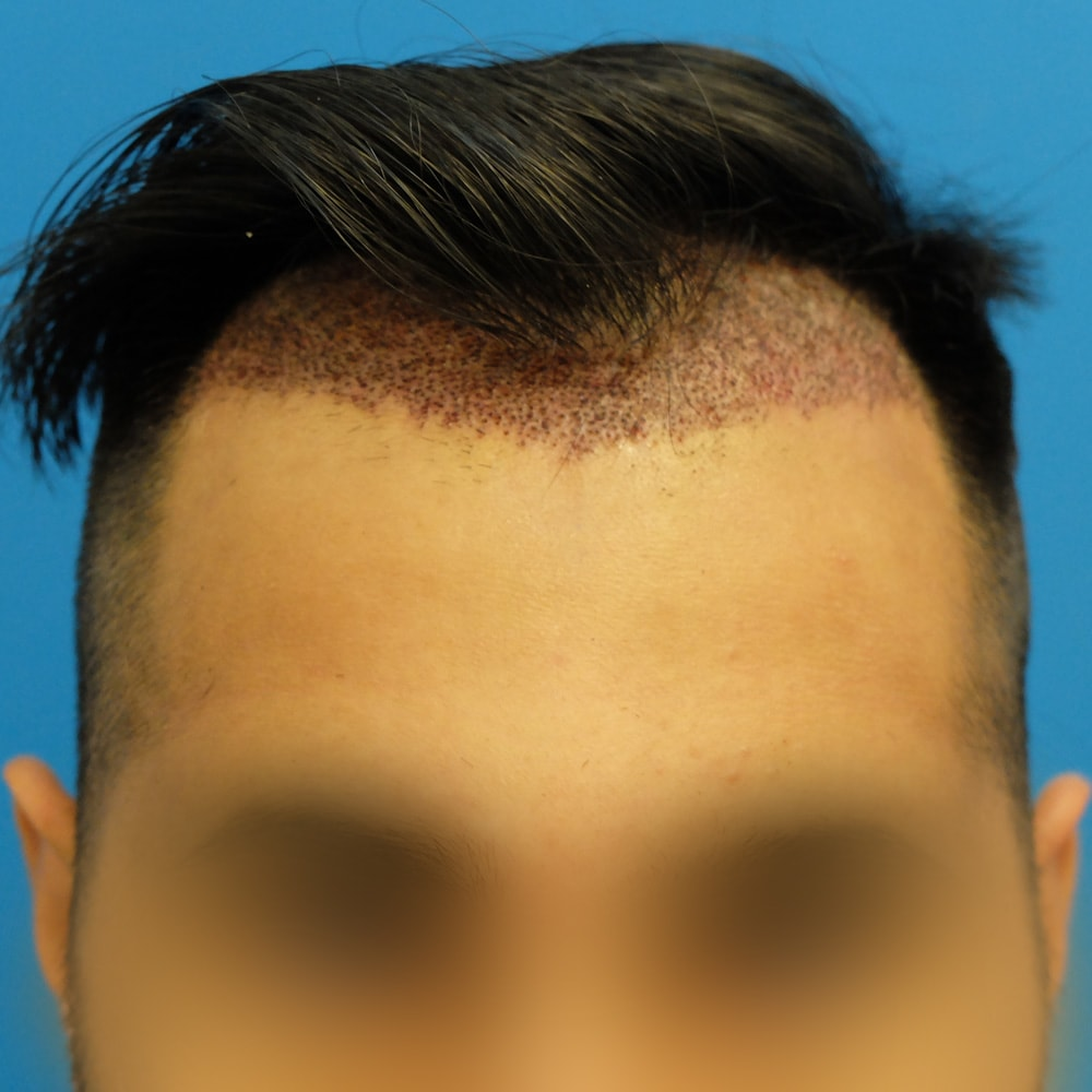 hair transplant side effects scabbing 3 days post op