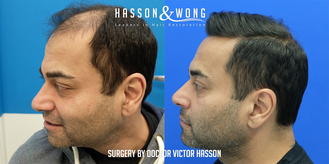 left side of head comparison before and after hair transplant of 5474 grafts