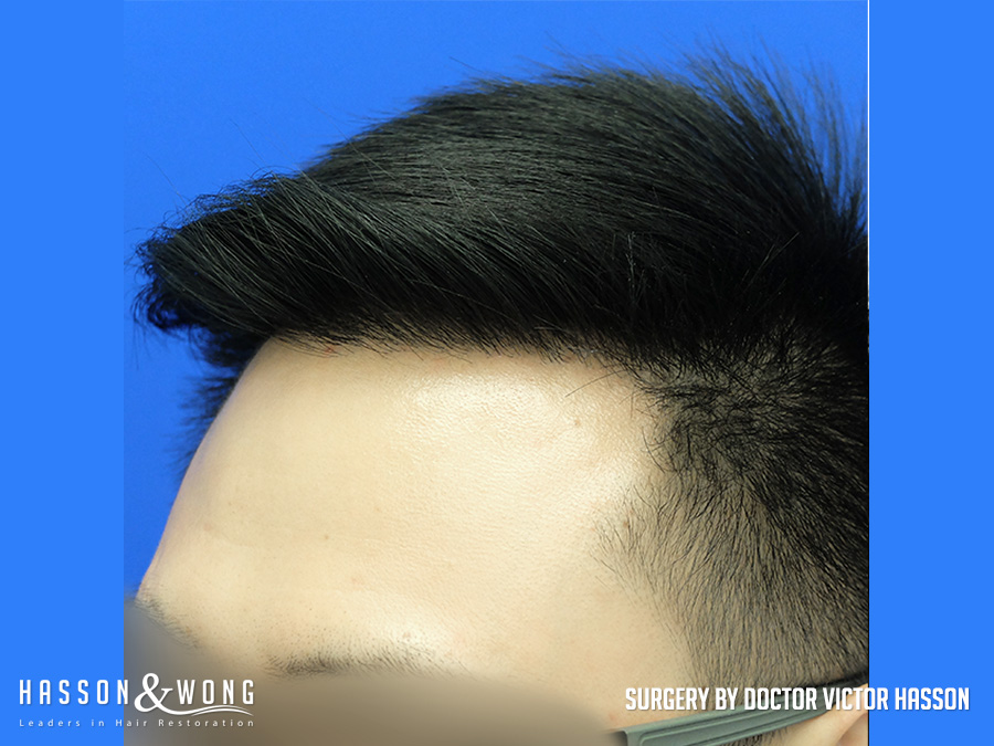 FUE hair transplant surgery photo left temple view of patient's results after 2575 hair transplant grafts