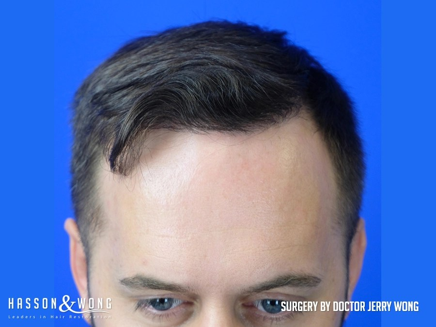 after hair transplant 3654 FUE grafts front close up view
