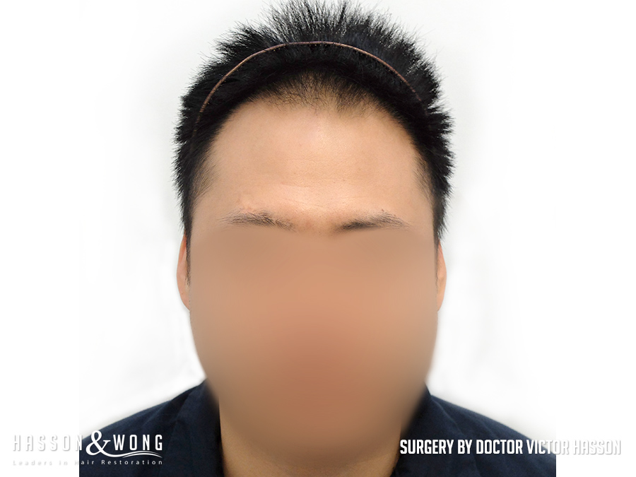 FUE hair transplant surgery photo full front view of patient's hair and face before 2575 hair transplant grafts