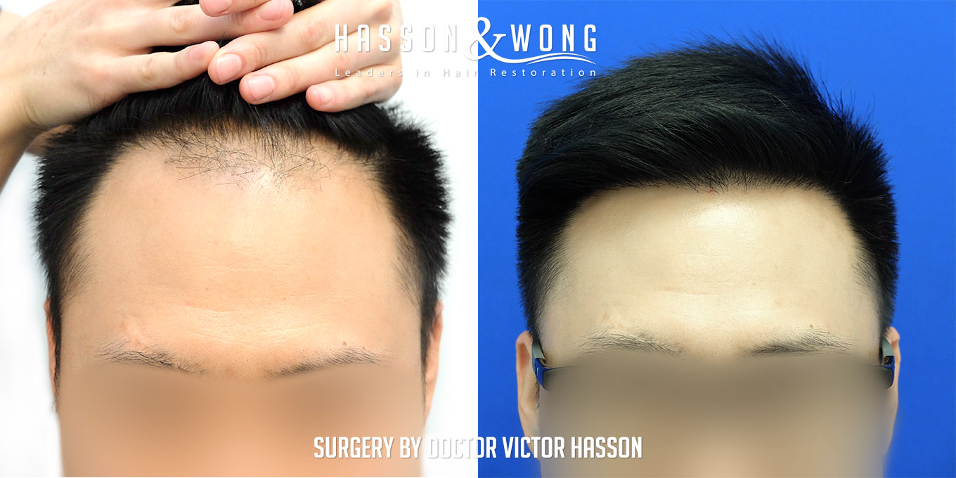 FUE hair transplant before and after photos front view after 2575 FUE hair transplant grafts