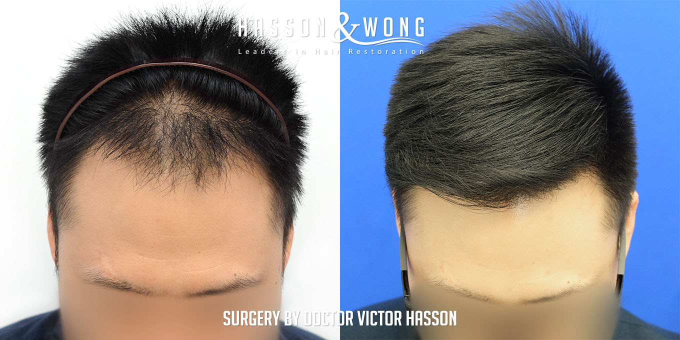 FUE hair transplant before and after photos front tilt view after 2575 FUE grafts
