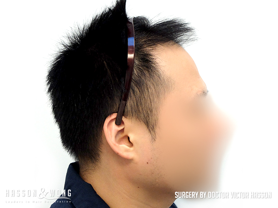 FUE hair transplant surgery image right side view of patient's hair before 2575 FUE hair transplant grafts