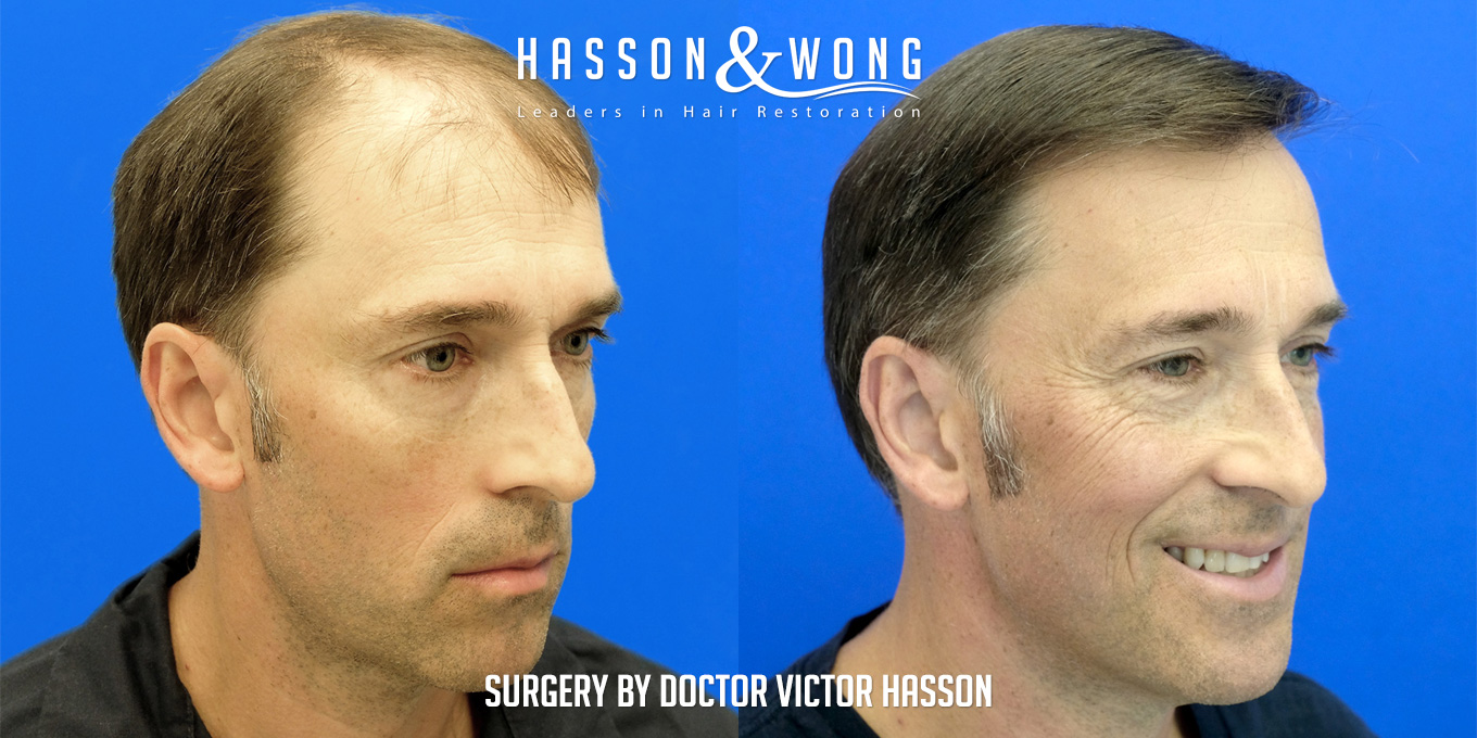 before and after hair transplant surgery of 6514 grafts side by side right temple view