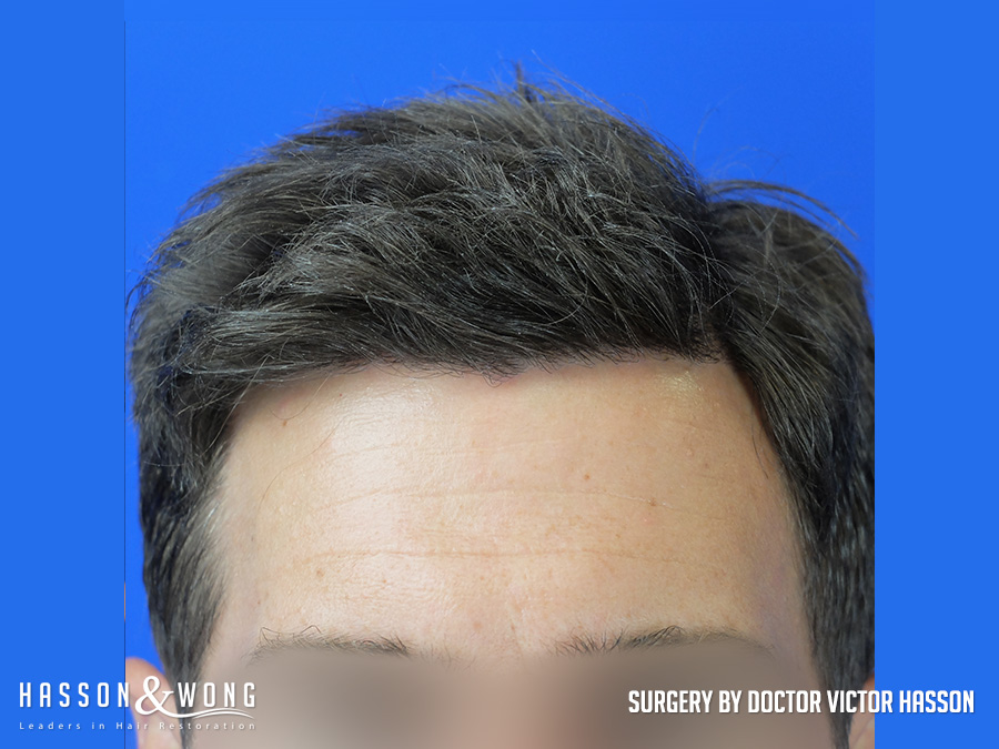 4035 graft FUE hair transplant close up of hair line after surgery