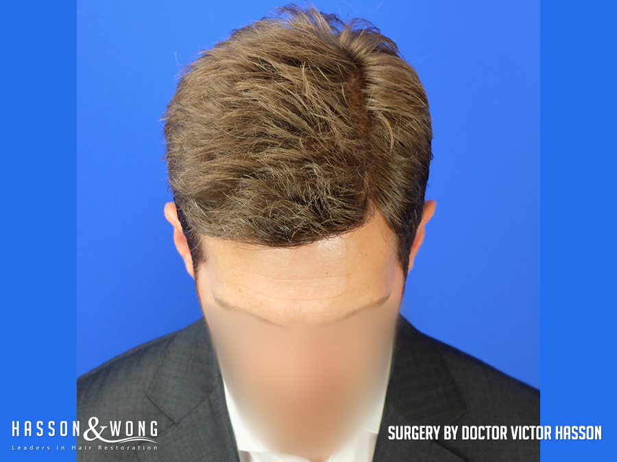 4035 graft FUE hair transplant front tilt after surgery