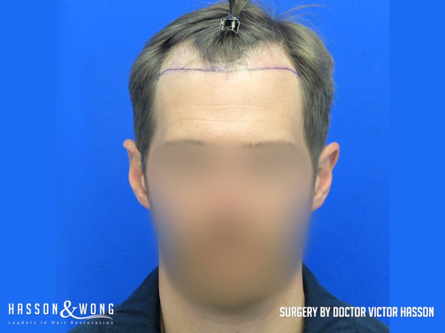 4035 graft FUE hair transplant full front before surgery