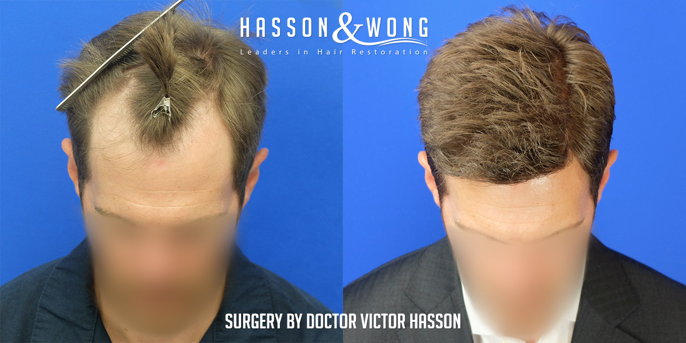 FUE hair transplant before and side by side front tilt view after 4035 grafts