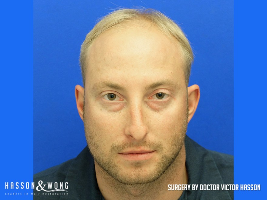 fue hair transplant before surgery front view fue patient