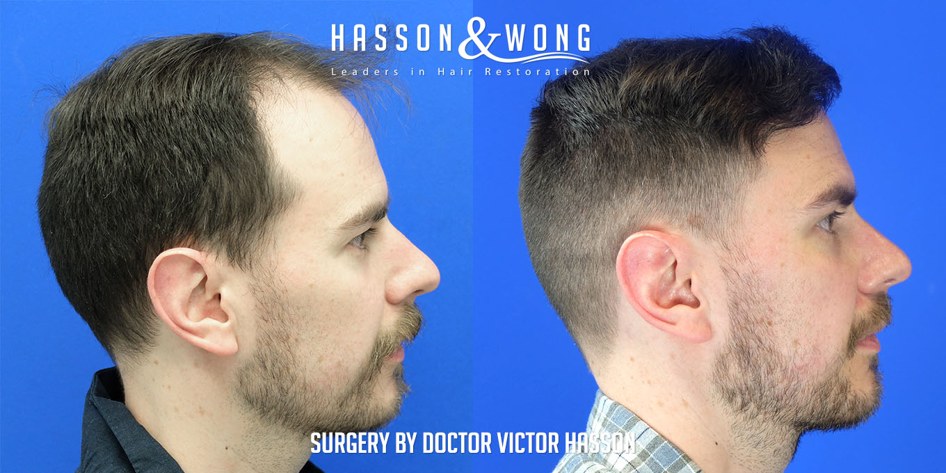 right side of head before and after FUE hair transplant comparison after a 3000 graft surgery