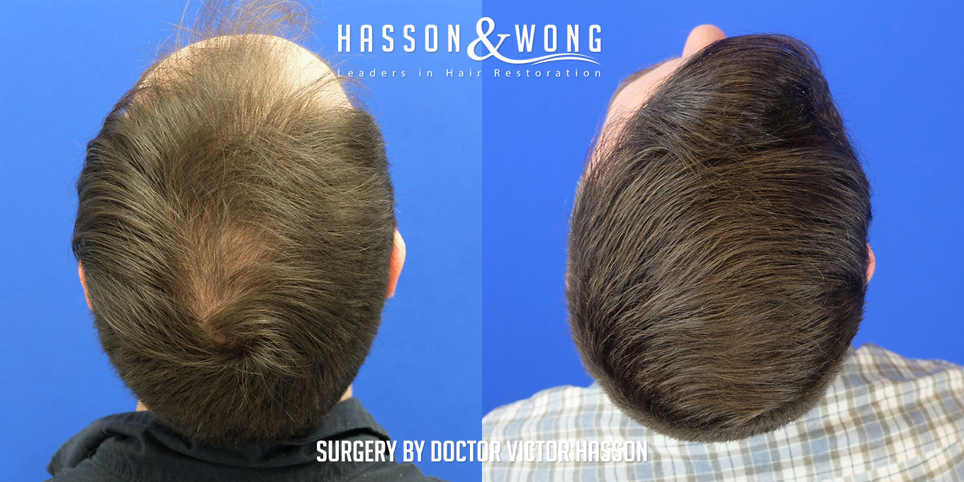 top of head before and after FUE hair transplant comparison after a 3000 graft surgery