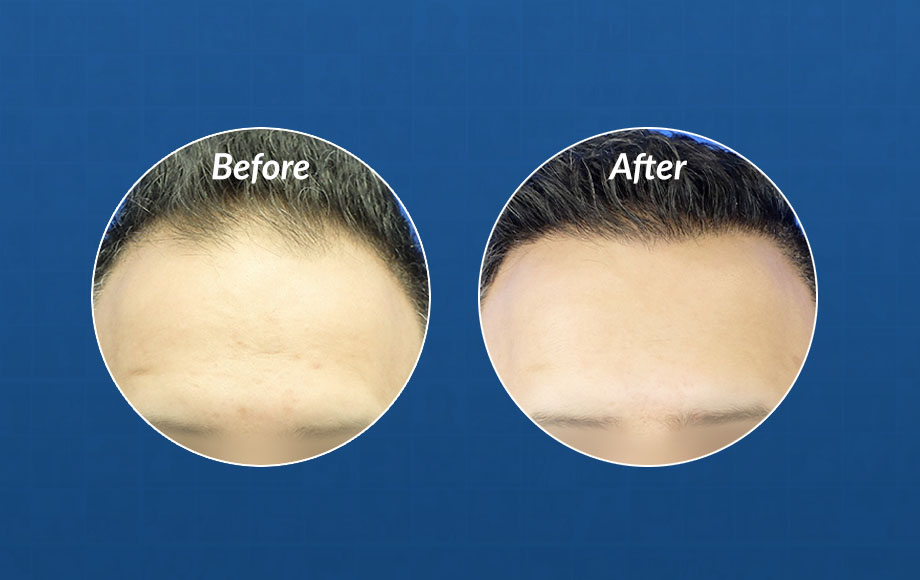 hair transplant surgery timeline fue 3001 grafts