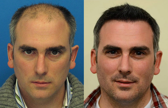 vancouver hair transplant surgery homepage before after