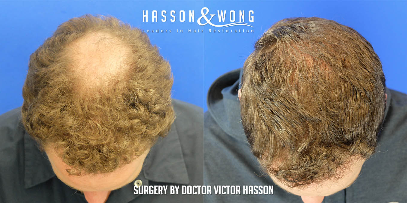crown hair transplant area before and after