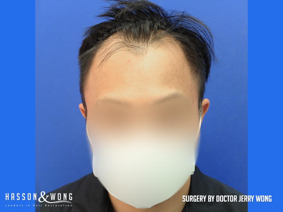 fue hair transplant 2165 grafts front