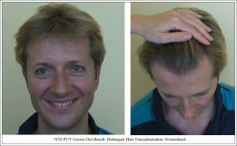 Hair Transplant Results. Hattingen Hair Transplantation (8)