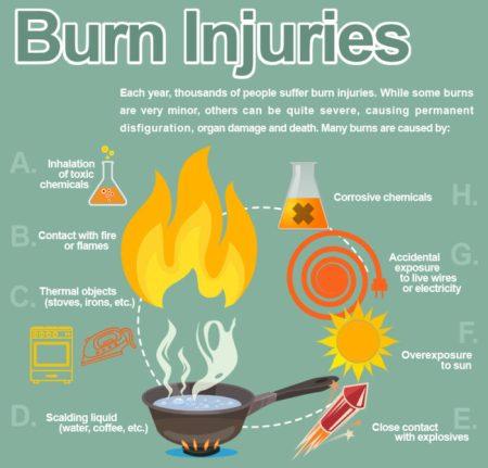 burn injury causes