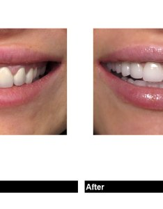 With so many different cosmetic dental treatments options to improve and enhance your smile porcelain veneers are widely considered be the best possible also perfect veneer tooth shapes for new rh hauteliving