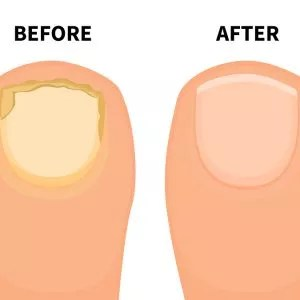 Laser Fungal Nail (NDyag) Body Treatment
