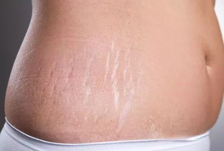 stretch-marks-feat