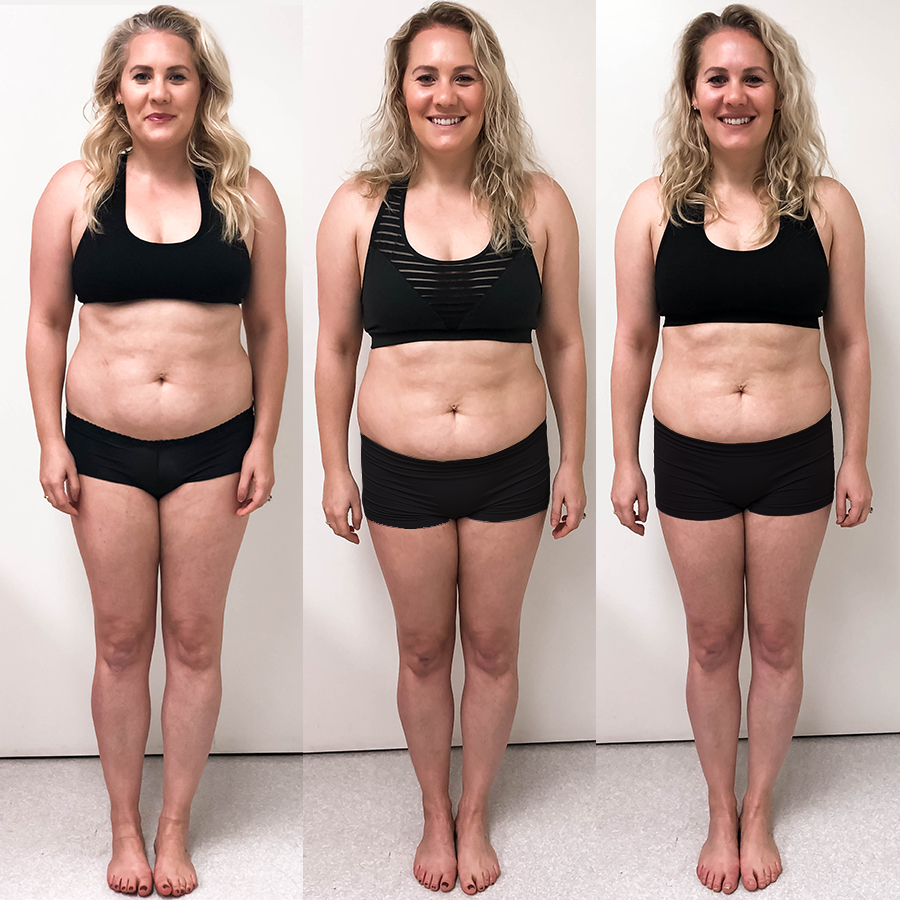Sharing my experience and results with TruSculpt 3D body sculpting treatment on Have Need Want. Click on the photo to check out the post! #bodysculpting #trusculpt #trusculpt3d #bodycontouring