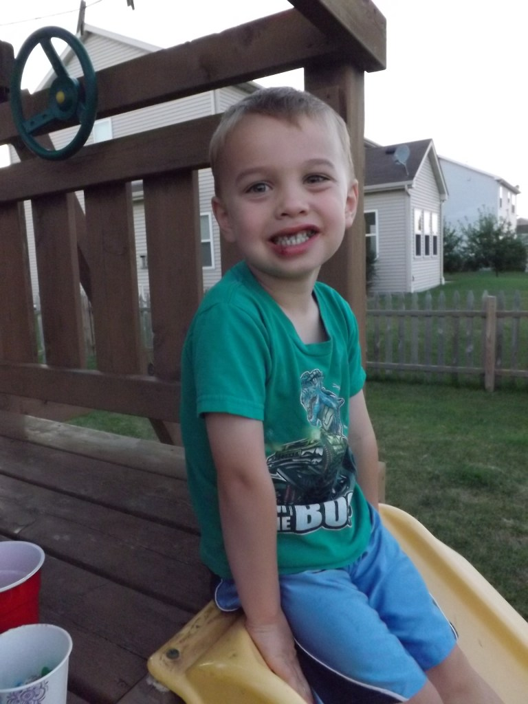 Our Bruiser Boy