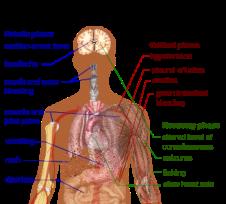 330px-dengue_fever_symptoms-svg