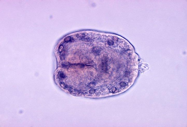 Echinococcus granulosus in its larval stage