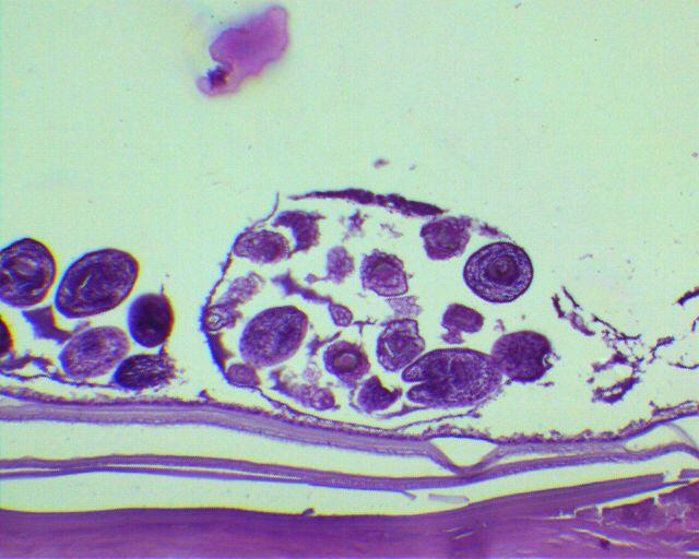 Echinococcus granulosus larvae in a hydatid cyst