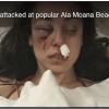 昼間にアラモアナビーチパークで女性が襲われました。怖い、要注意!!