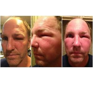 what cause face swelling