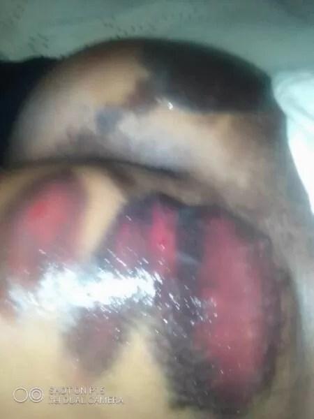 Final year JHS student beaten heartlessly by her teachers