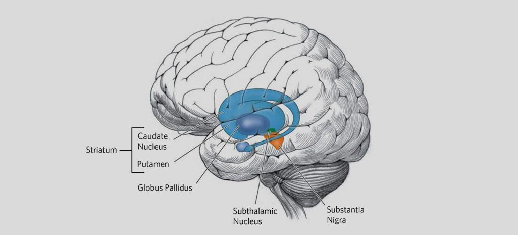 Huntington's disease Symptoms and Treatment