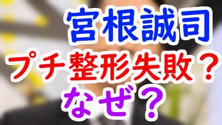 宮根誠司の二重のプチ整形が変過ぎて失敗⁉︎顔を変えた理由や費用はいくら?