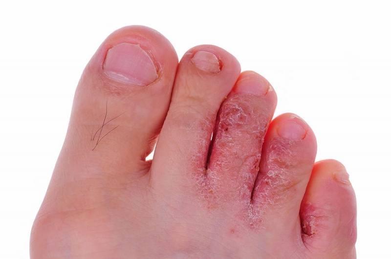 Причины появления пятен на стопах и подошвах ног