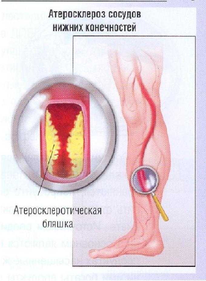 4 hipertenzijos rizika