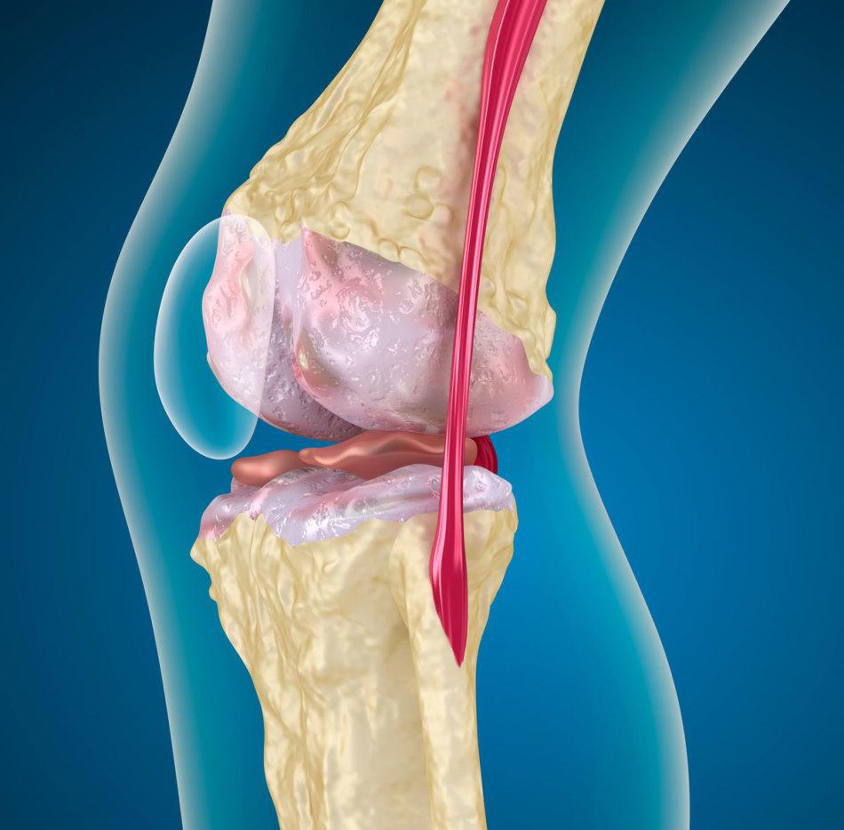 Лечение суставов содой пищевой при болях