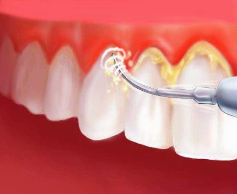 Уход за полостью рта. Уход за полостью рта: зубы, дёсна, язык… Уход за полостью рта заключается